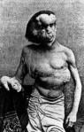 elephant_man-sideshow-performer-freak-Joseph-Merrick-255x400